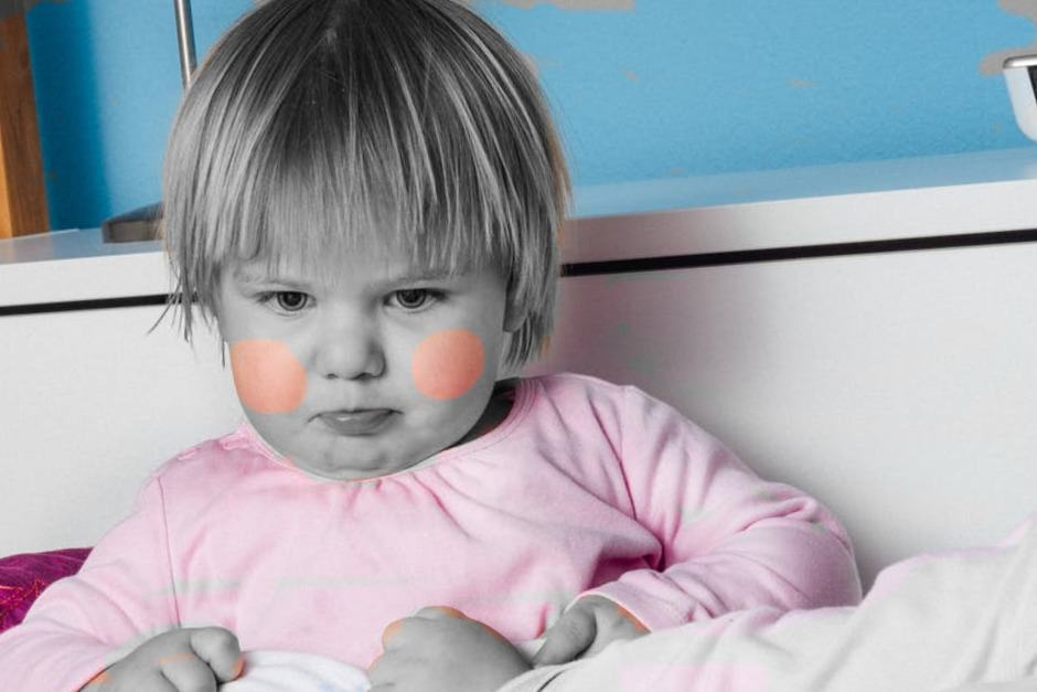 Крапивница у детей - причины, симптомы, диагностика и лечение