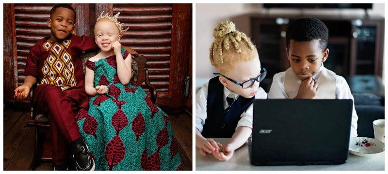 deti_blizneci_albinos
