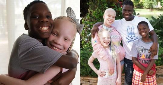 blizneci_ne_pohojie_albinizm_foto(1)