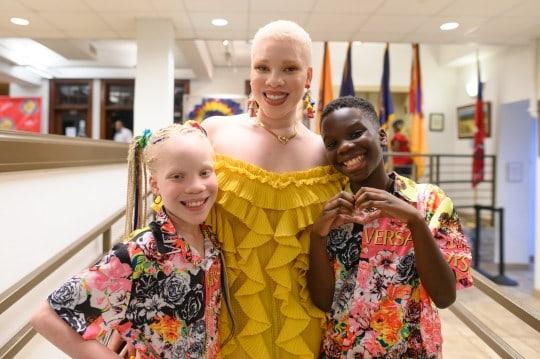 blizneci_ne_pohojie_albinizm_foto(2)